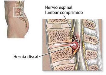 La medicina a la osteocondrosis de la columna vertebral