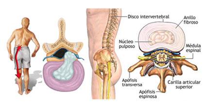 El refuerzo del corsé muscular a la osteocondrosis
